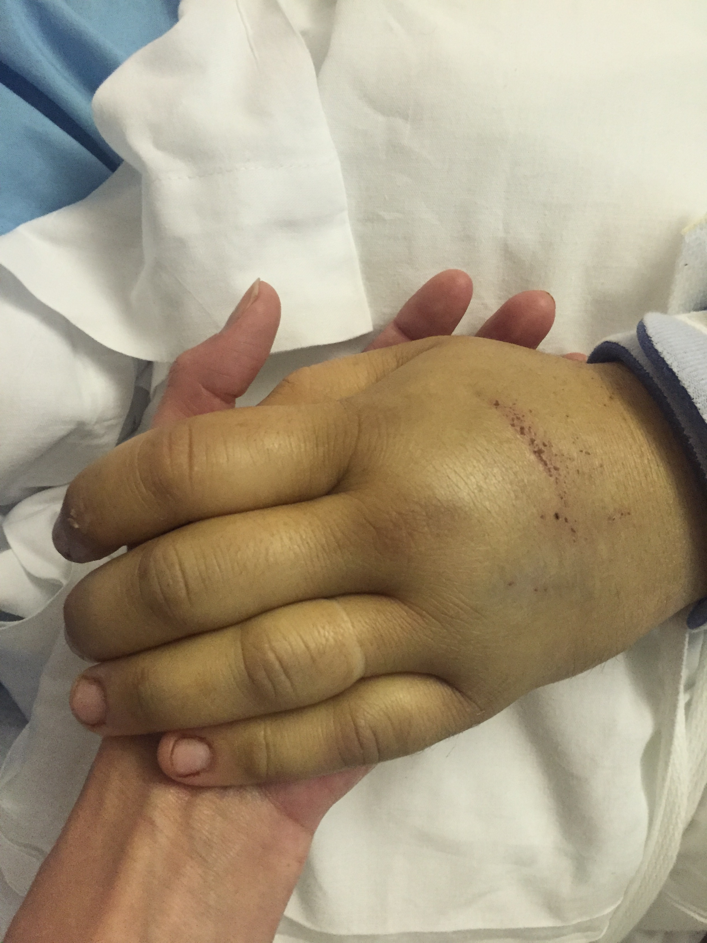 Rachel holding Michael's swollen and jaundiced hand during the recovery process.